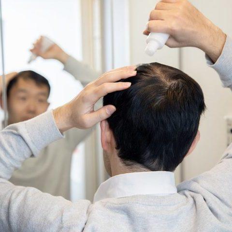 頭頂部の薄毛が気になるあなたに!覚えておきたいアプローチポイントサムネイル